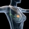 Brustkrebs Heilung