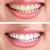 Die Schmelzbildungsstörung Molaren-Inzivisen-Hypermineralisation führt zu schmerzempfindlichen Zähnen und Zahnverfärbungen