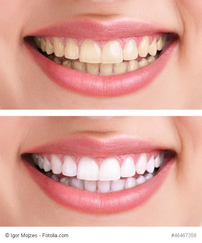 Zahngesundheit: Kranke Zähne durch Mineralstoffmangel